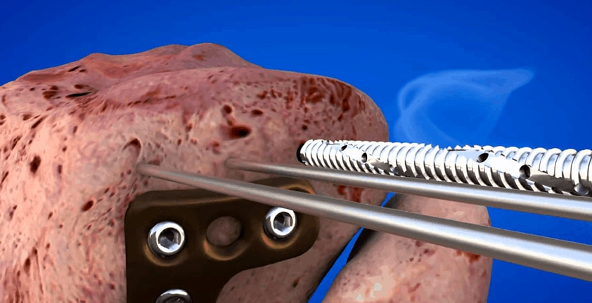 Knee replacement Medical 3D Animation | Motion Graphics Video |