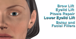 plastic-surgery-reverse-aging-medical-device-respiratory-3d-medical-explainer-video-website-3d-medical-animation-company-studio-3d-visualization-health-care-san-antonio